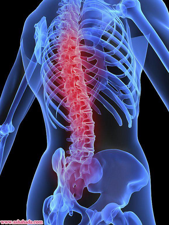 هناك الكثير من المشاكل الطبية التي قد تصيب منطقة العمود الفقري في أسفل الظهر
