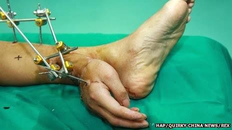 صيني زرعو له الأطباء يده في قدمه حتى لا تموت .بالصور.