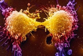 استحداث جهاز جديد للكشف عن الخلايا السرطانية