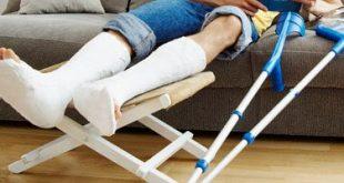 أستاذ جراحة عظام يوضح أسباب فشل التئام العظام بعد الجبس