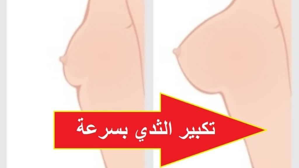 تكبير الصدر الثدي وشد الترهلات