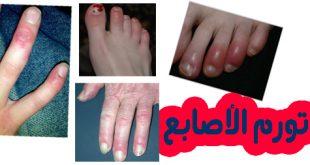 علاج تورم أصابع القدم بوصفات طبيعية
