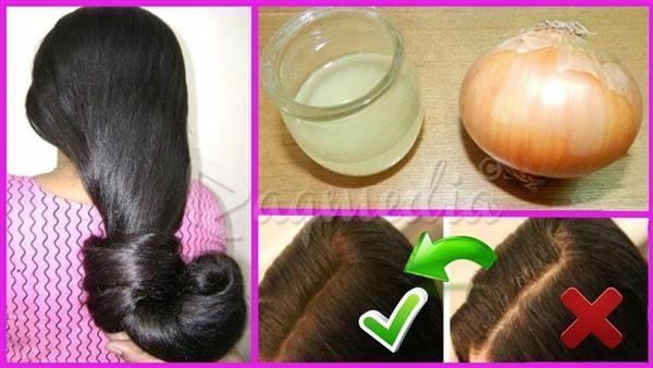 عصيرالبصل لإيقاف تساقط الشعر